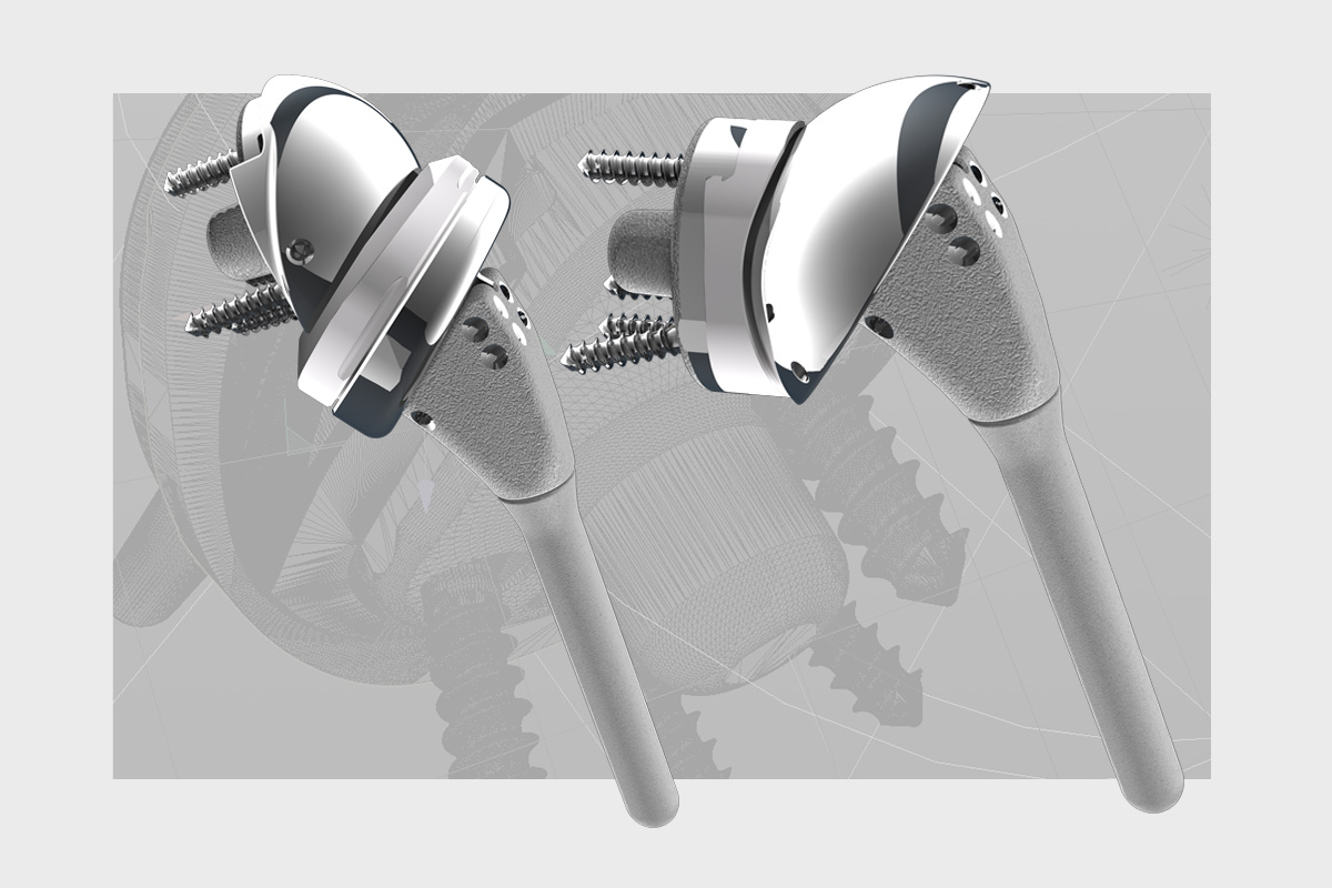 artificial joints rendered in 3D
